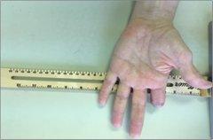 <b>案例研究:为患者3D打印特异性部分手指假体</b>