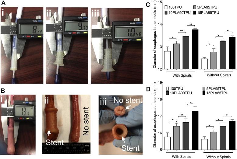 大西洋大学开发用于食道癌患者的3D打印柔性自扩张支架