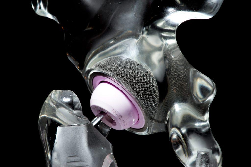 利用和Arcam的3D打印臀部杯将球和插座固定到位