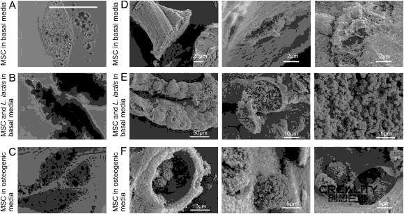 科学家用生物3D打印技术为干细胞工程提供细菌负载微凝胶
