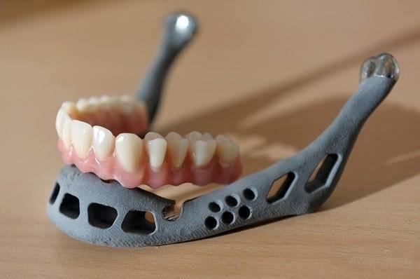 3D打印机制作模拟假牙套
