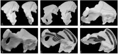 <b>我国研究人员使用对称性和3D打印医学模型修复骨骨折</b>