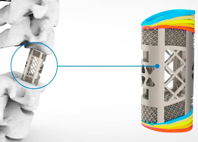 华翔的脊柱植入物的动画图像,显示了其温度耐受性水平